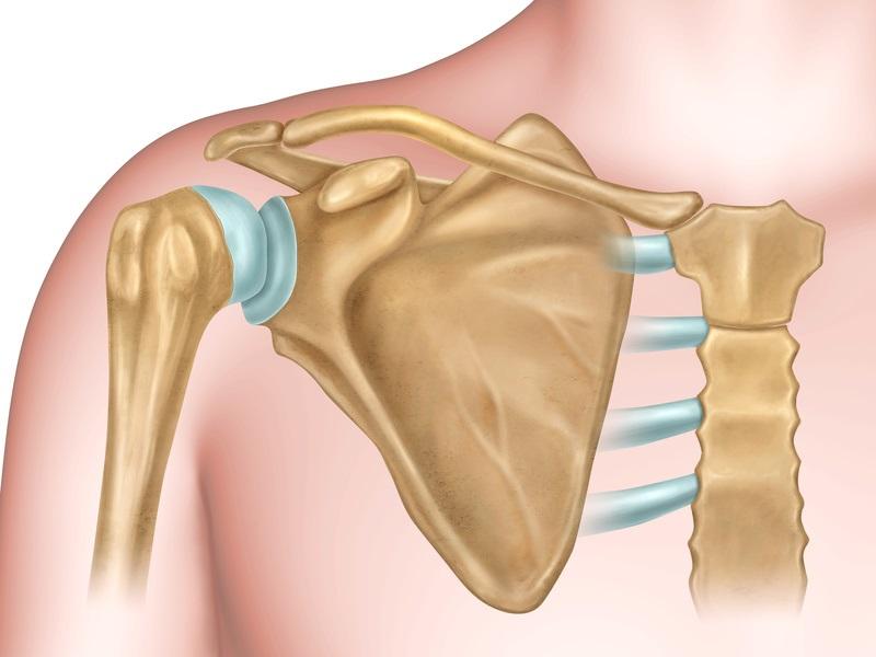 Ausgerenkte Schulter - Ursachen für das Auskugeln