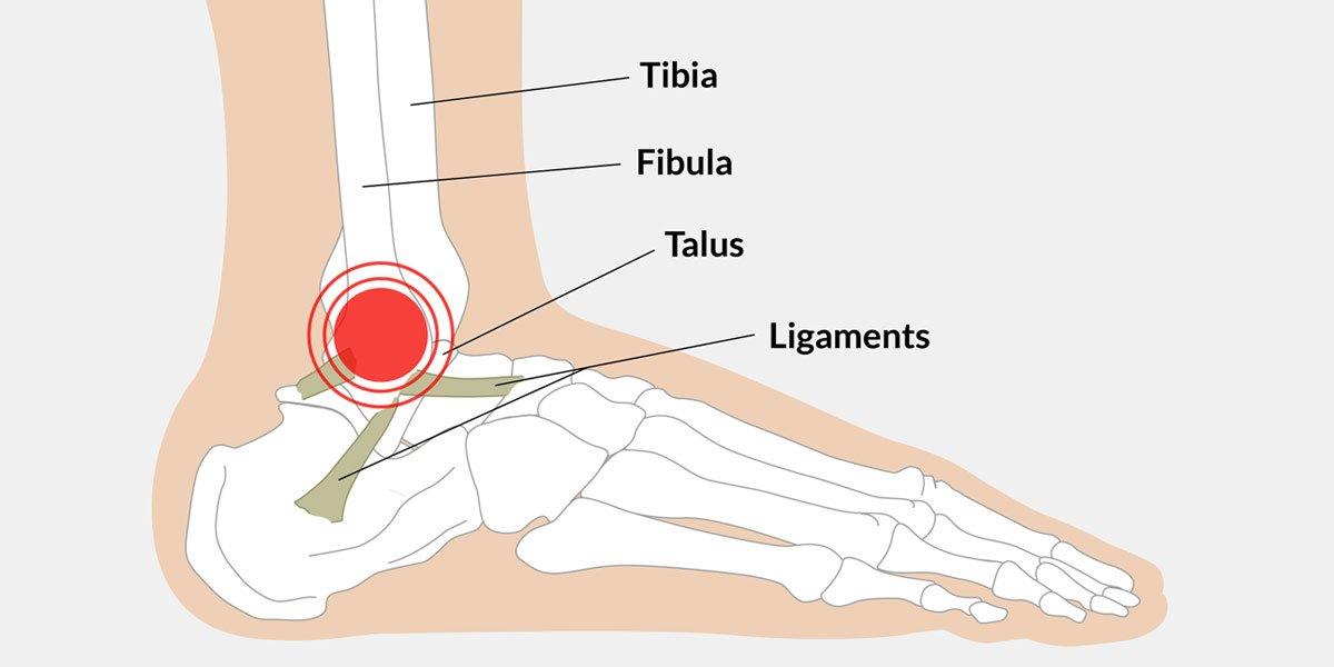 Bänderriss - Verletzung der Knöchelbänder